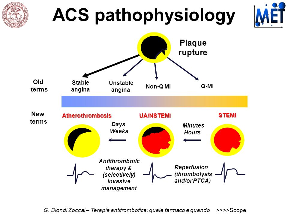 ACS pathophysiology Plaque rupture Old terms New terms Stable angina