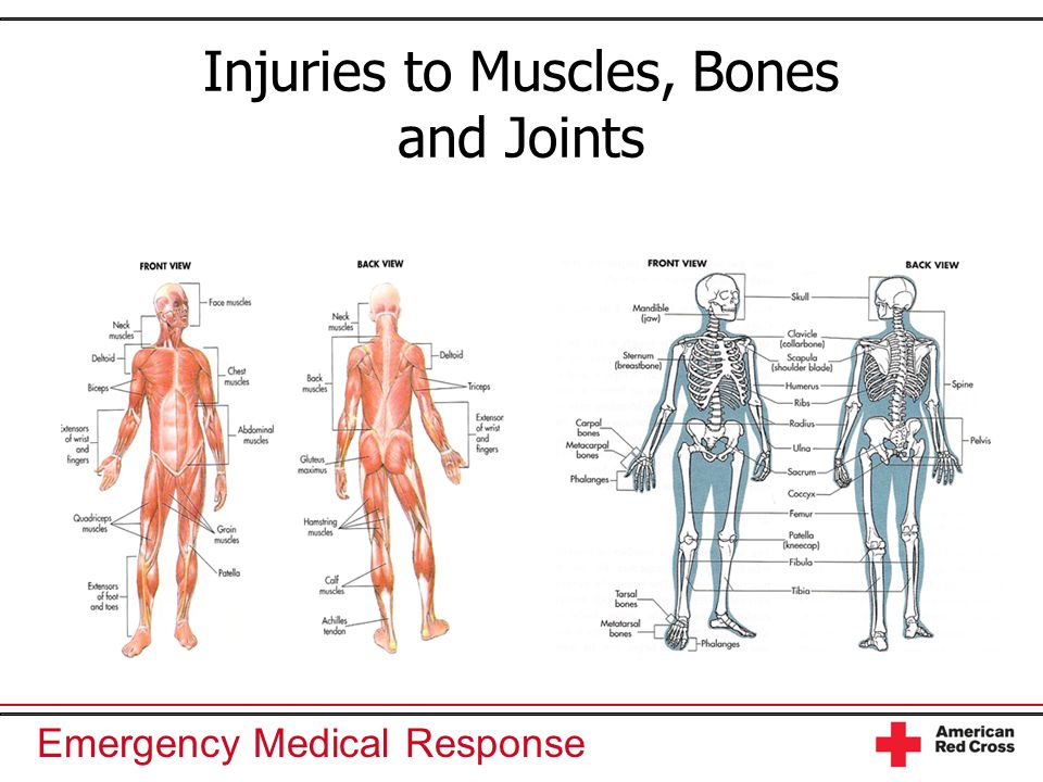 Injuries To Muscles Bones And Joints Ppt Video Online Download