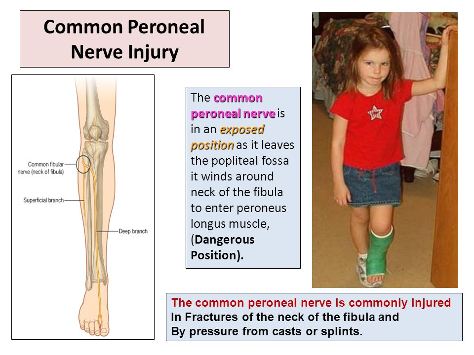 Common Peroneal Nerve Injury