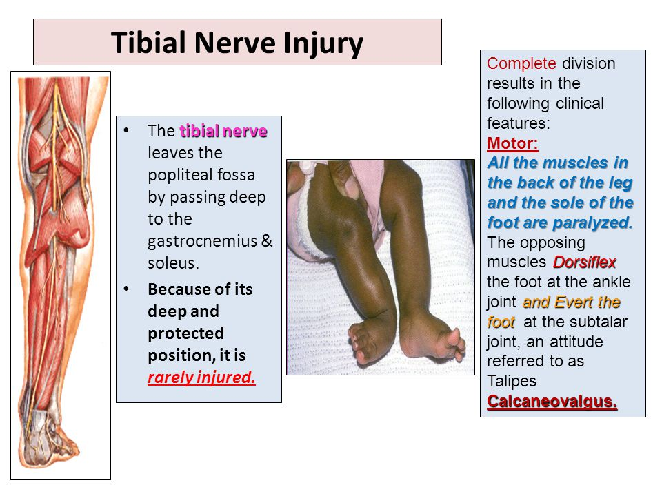 Tibial Nerve Injury Complete division results in the following clinical features: Motor: