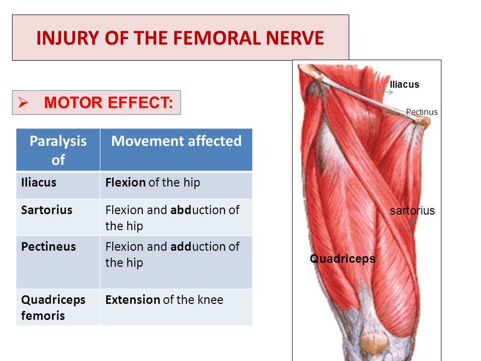 INJURY OF THE FEMORAL NERVE