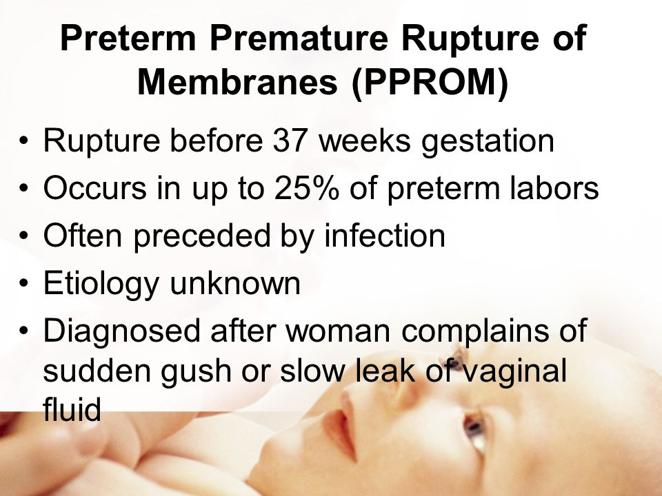 premature rupture of membranes article review