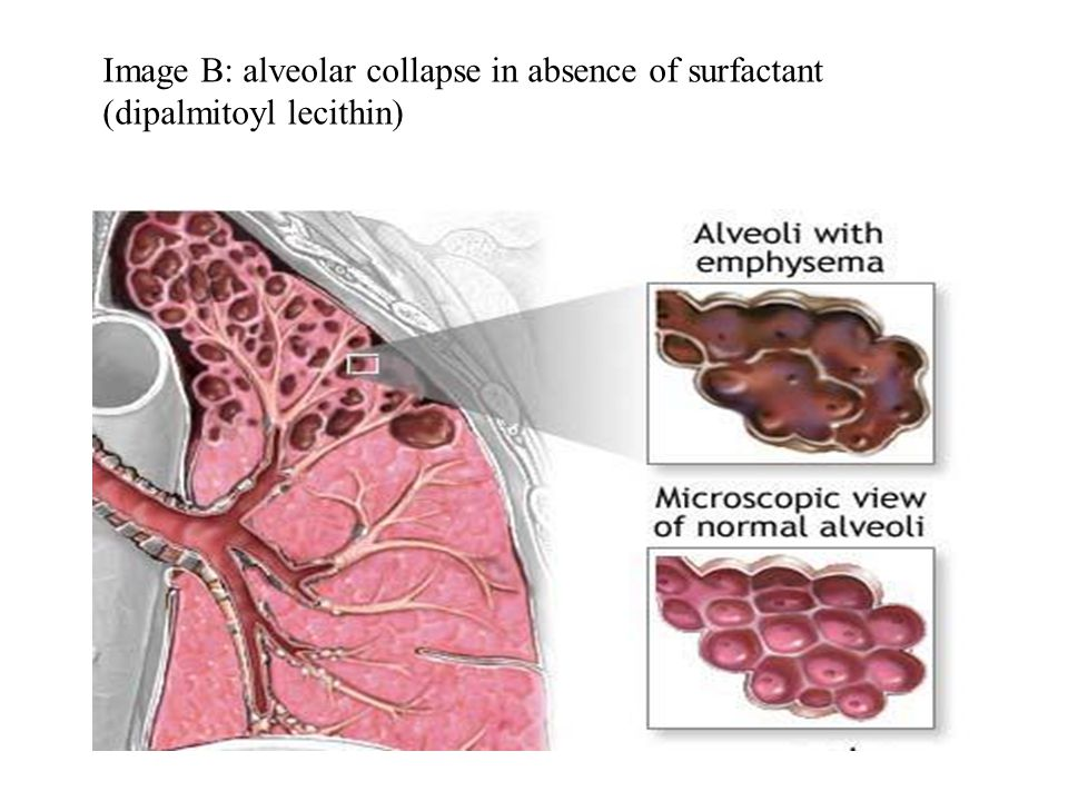 Image B: alveolar collapse in absence of surfactant (dipalmitoyl lecithin)