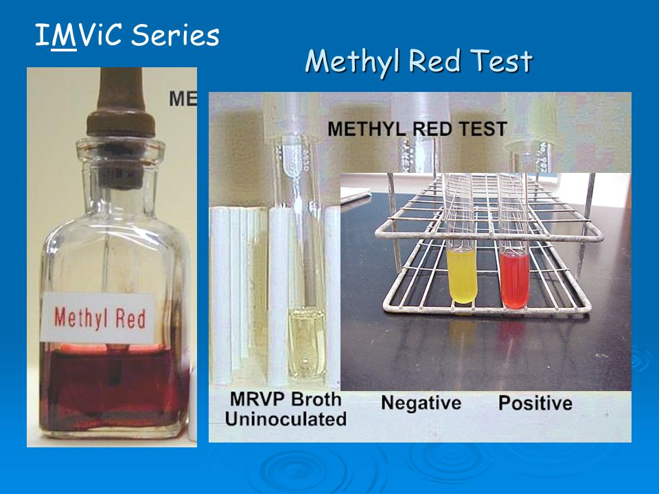 methyl red test essay Mr-vp tests methyl red (mr) and voges-proskauer (vp) broth is used as a  part of the imvic tests as the medium in which both the methyl red and.