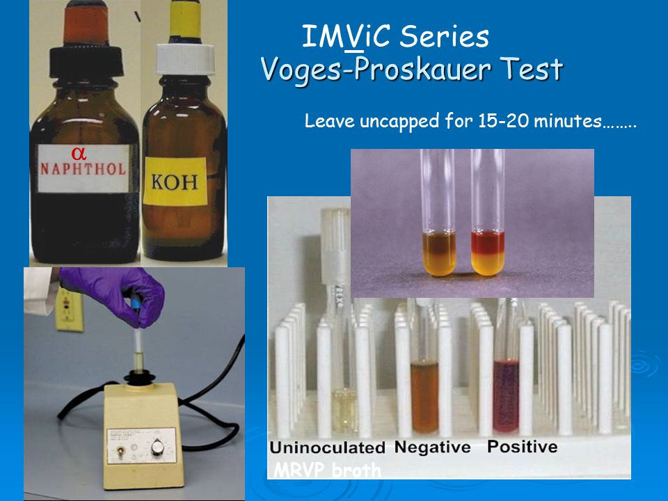 microbiology lab methyl red and voges proskauer Voges-proskauer and methyl red the voges proskauer reaction usually develops within 20 minutes note that  lab results page   microbiology home page.
