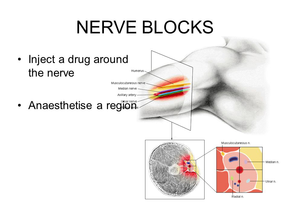 NERVE BLOCKS Inject a drug around the nerve Anaesthetise a region