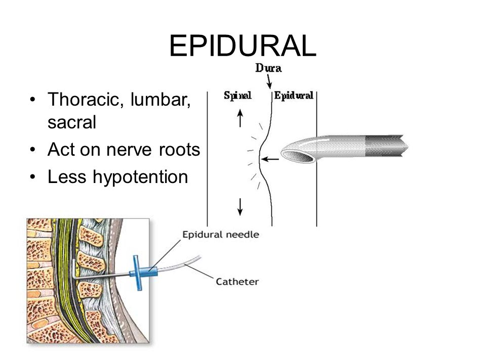EPIDURAL Thoracic, lumbar, sacral Act on nerve roots Less hypotention