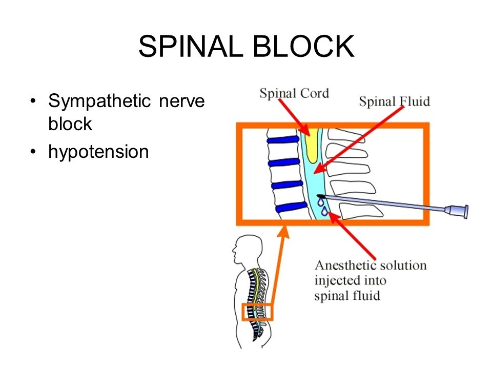SPINAL BLOCK Sympathetic nerve block hypotension