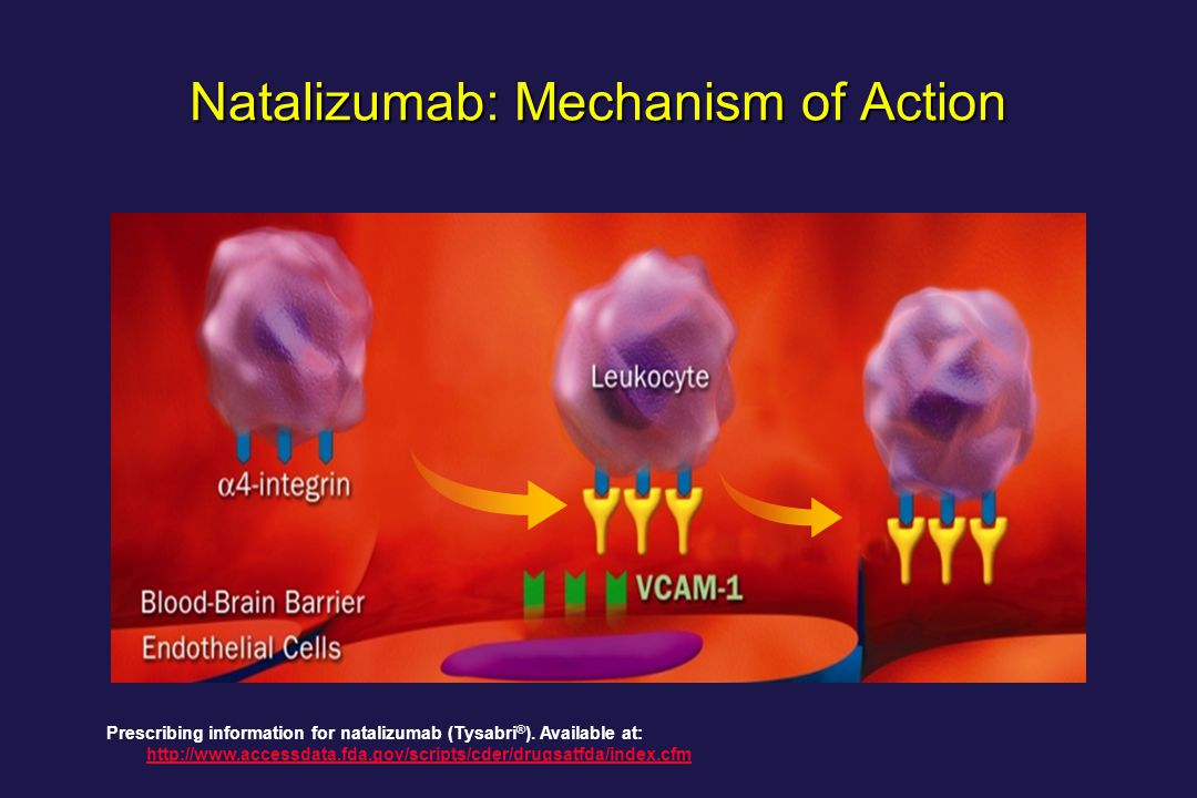 Natalizumab in pediatric multiple sclerosis patients