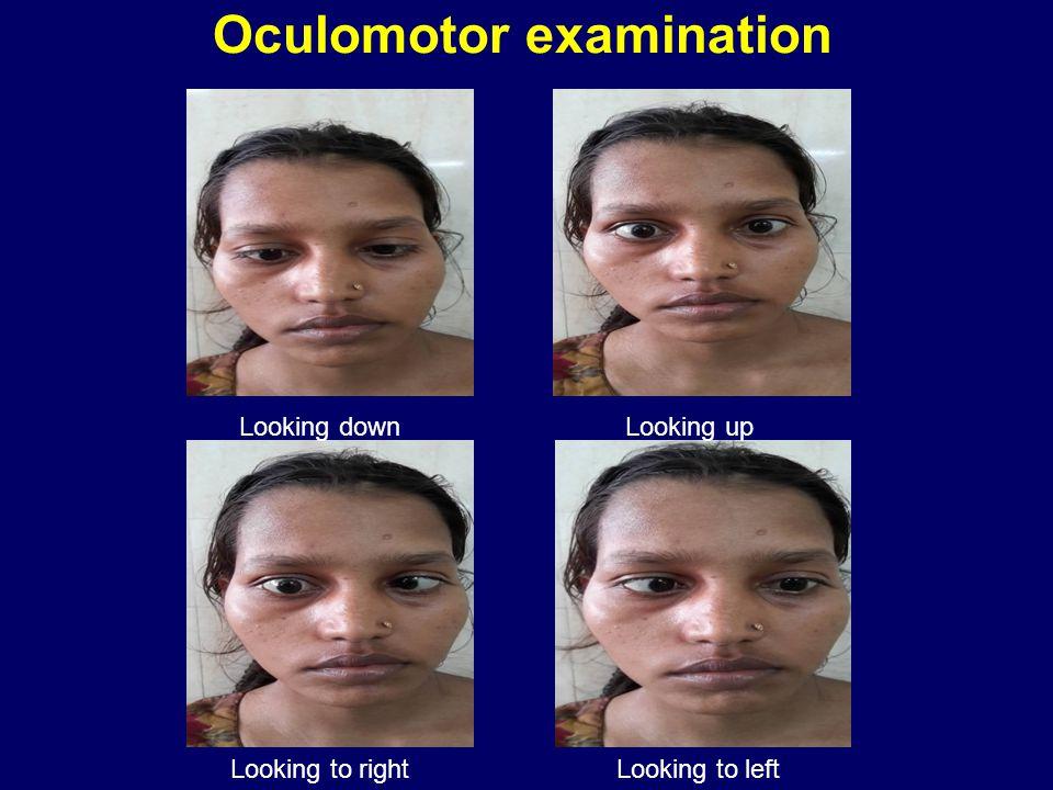 Oculomotor examination