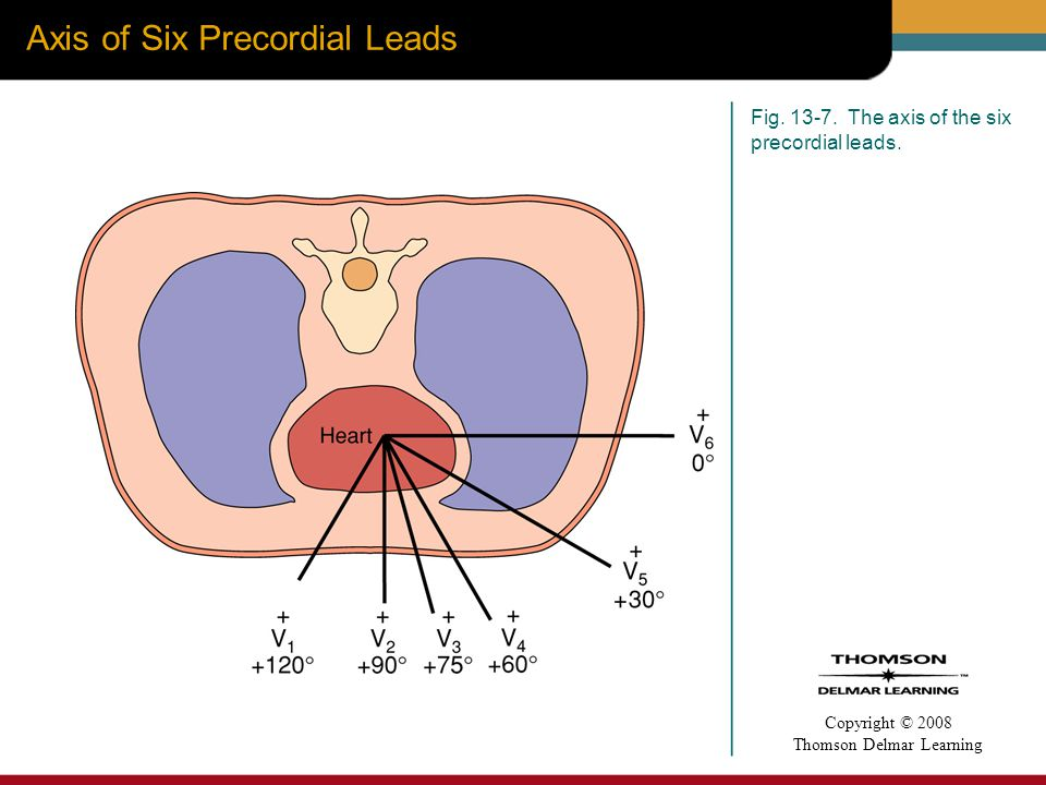 Axis of Six Precordial Leads
