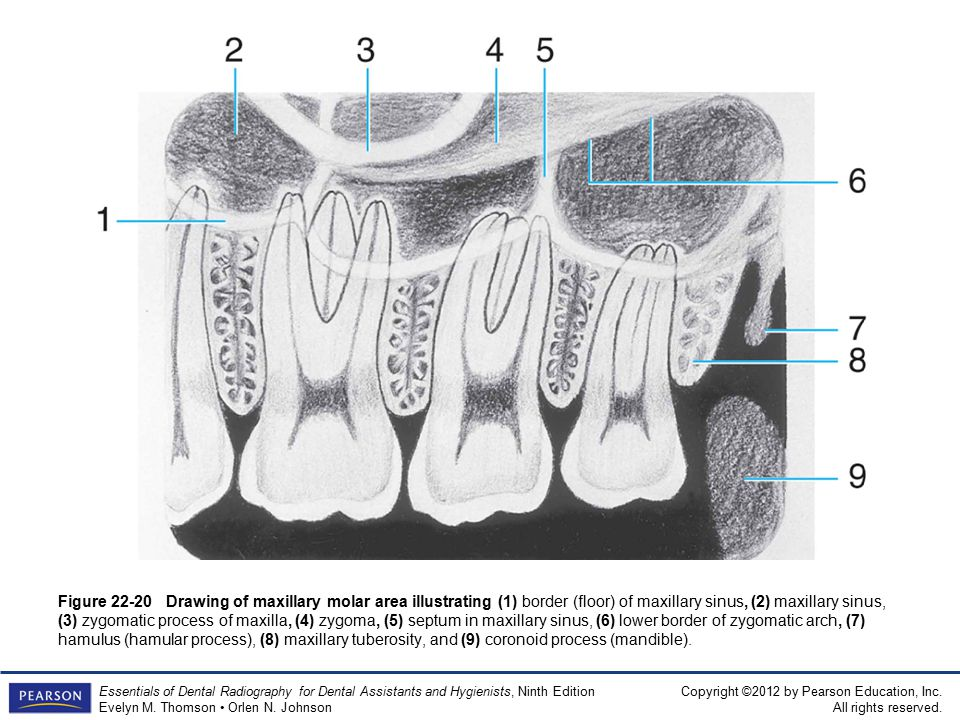 Beste Dental X Ray Anatomie Bilder - Anatomie Ideen - finotti.info