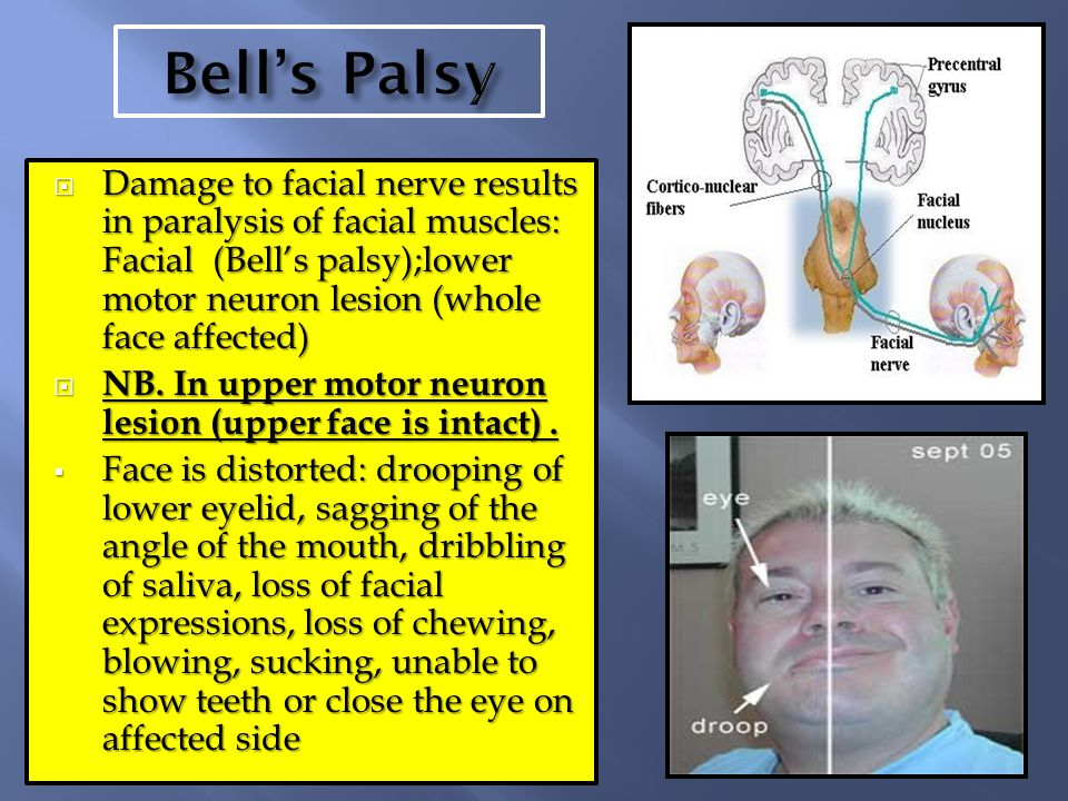 Lower motor nuclear facial palsy