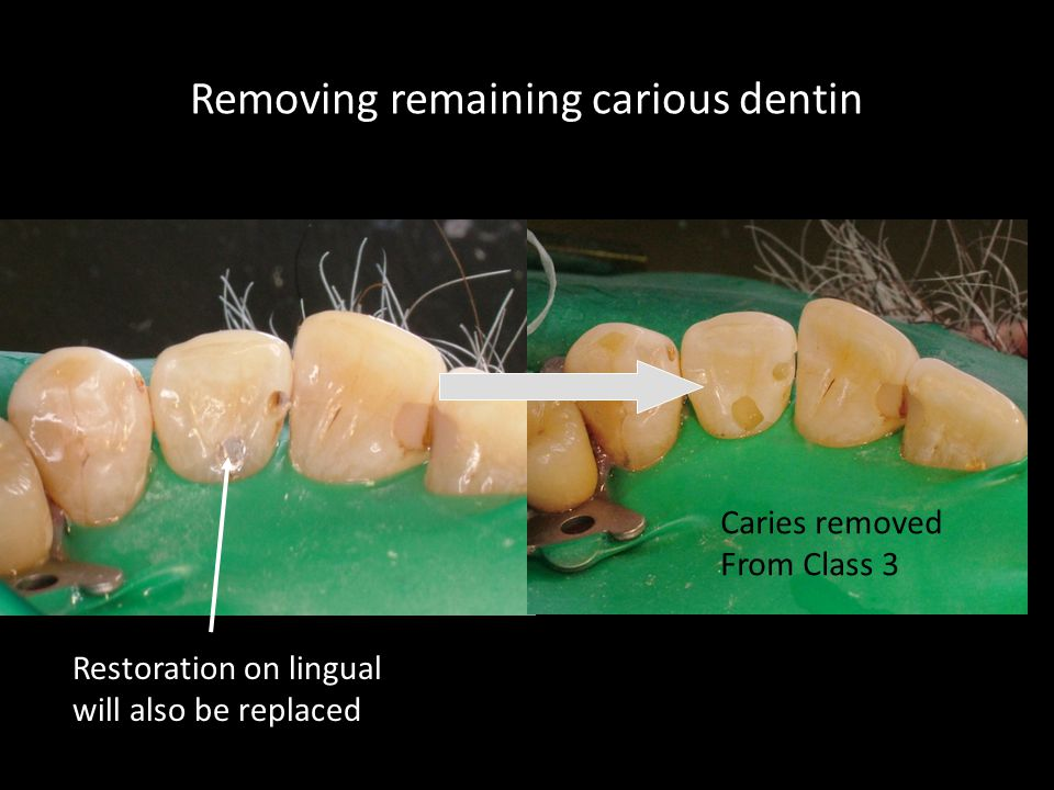 Removing remaining carious dentin