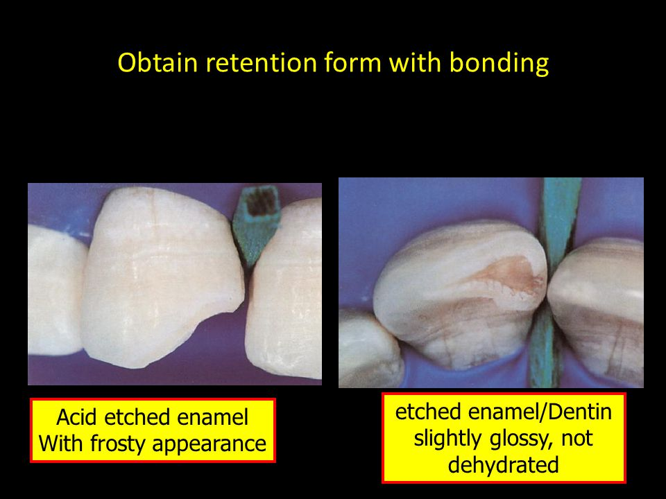Obtain retention form with bonding