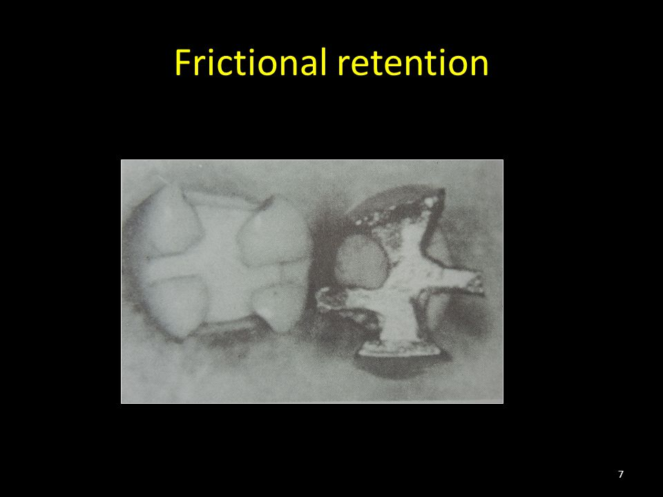 Frictional retention