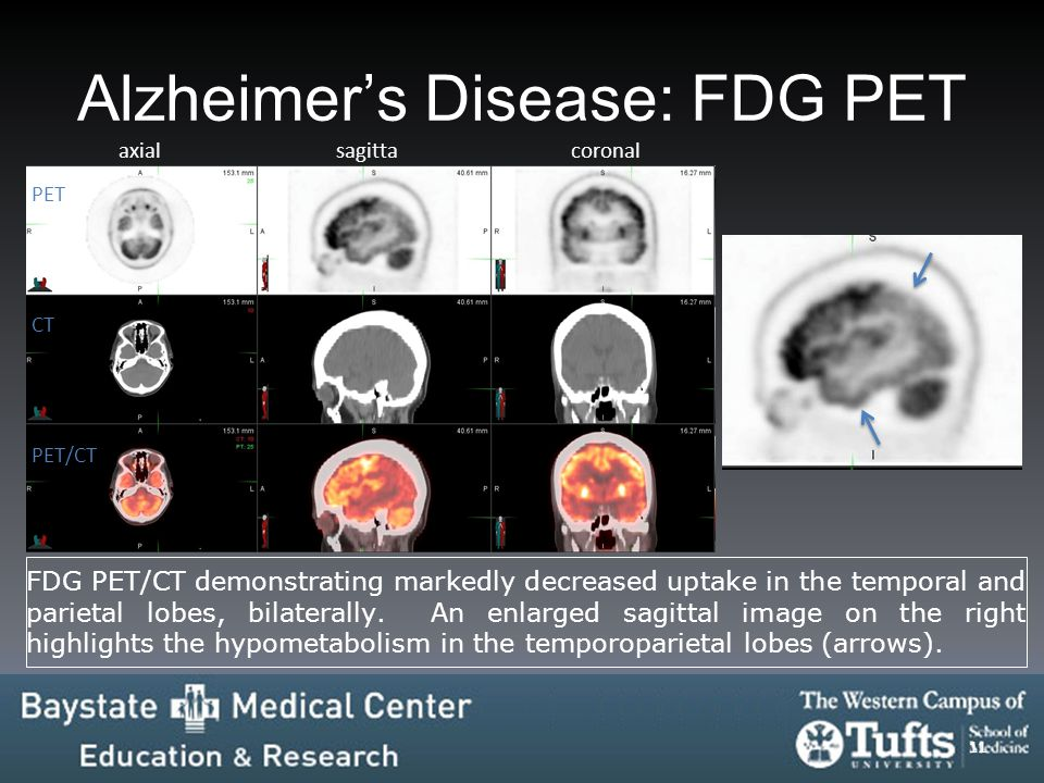 Alzheimer's Disease: FDG PET