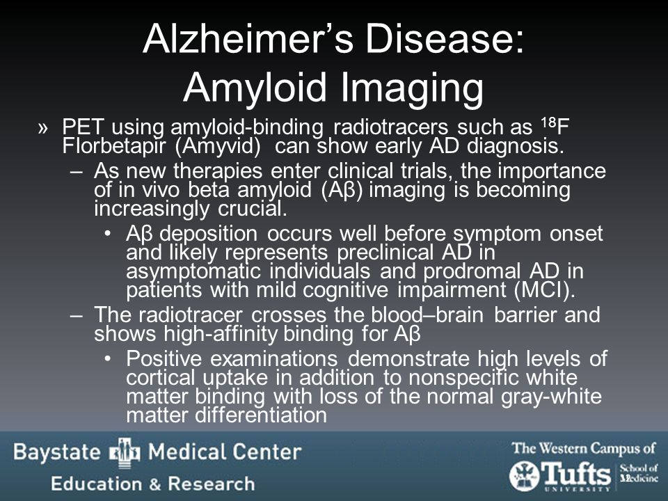 Alzheimer's Disease: Amyloid Imaging