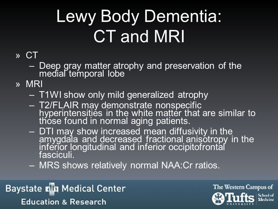 Lewy Body Dementia: CT and MRI