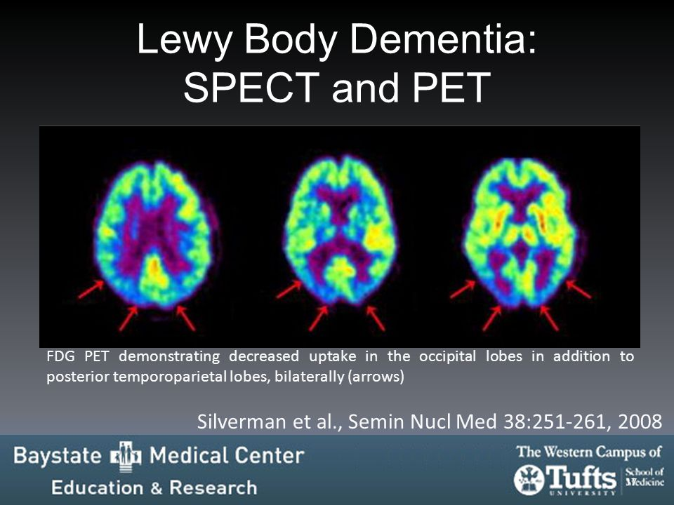 Lewy Body Dementia: SPECT and PET