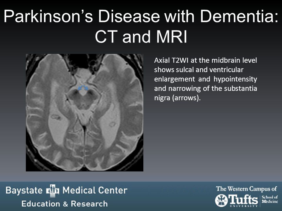 Parkinson's Disease with Dementia: CT and MRI