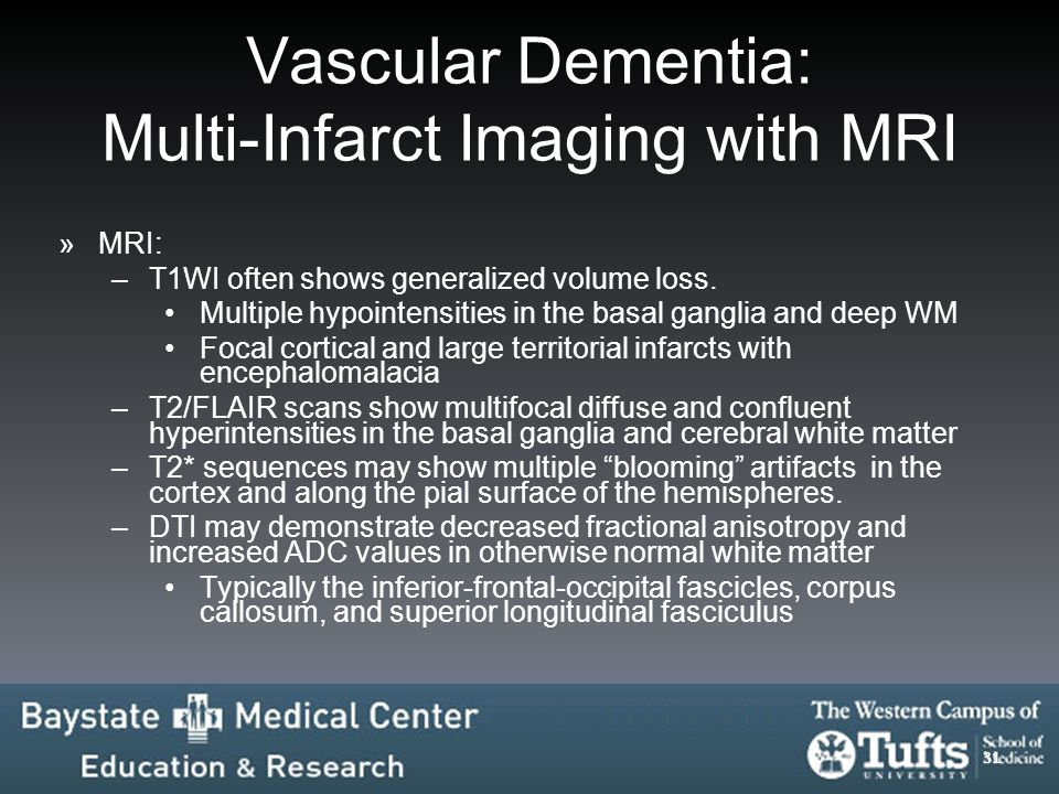Vascular Dementia: Multi-Infarct Imaging with MRI