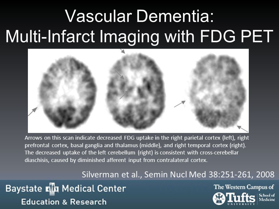 Vascular Dementia: Multi-Infarct Imaging with FDG PET