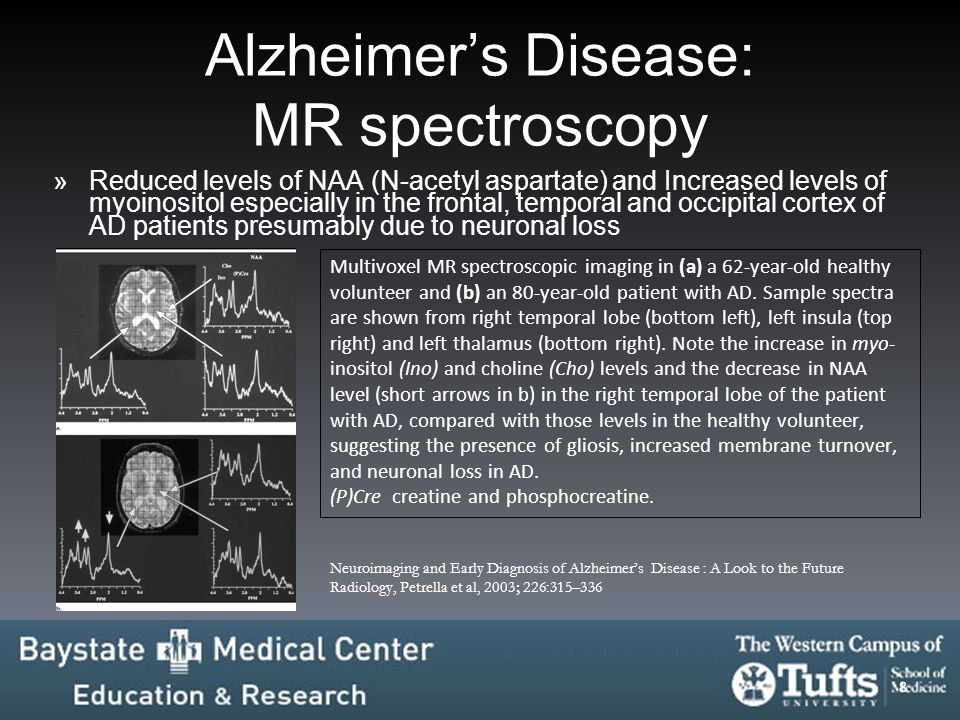 Alzheimer's Disease: MR spectroscopy