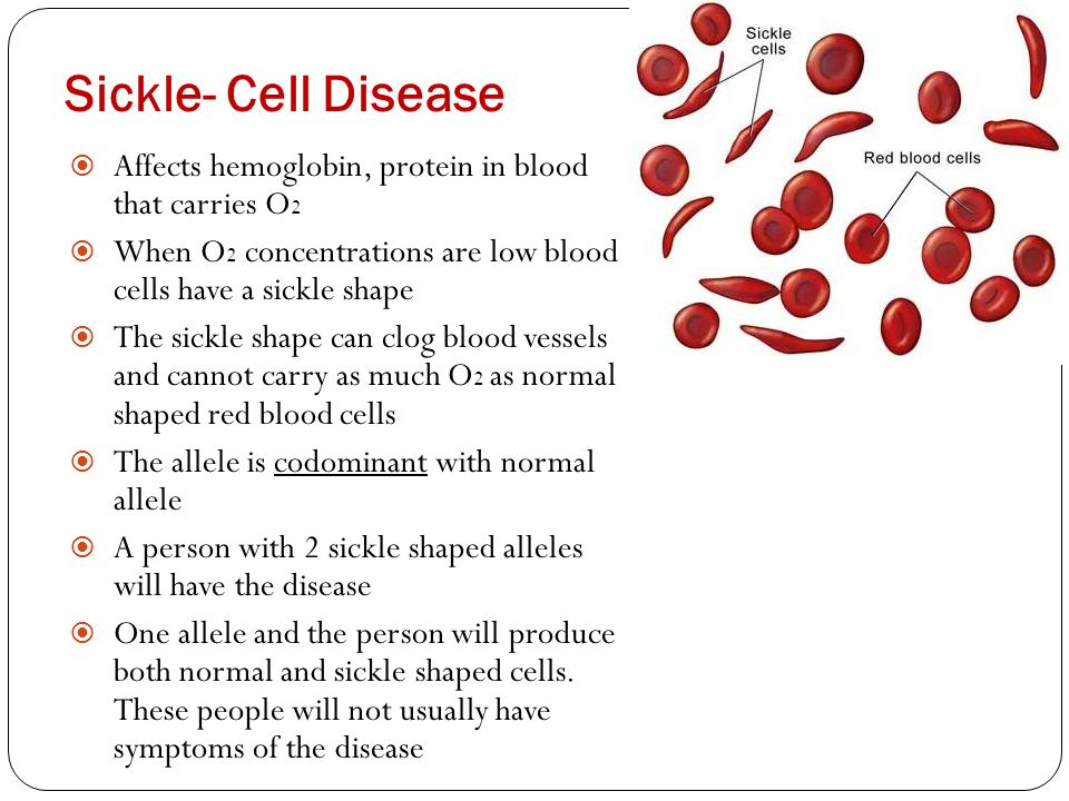 Sickle- Cell Disease Affects hemoglobin, protein in blood that carries O2. When O2 concentrations are low blood cells have a sickle shape.