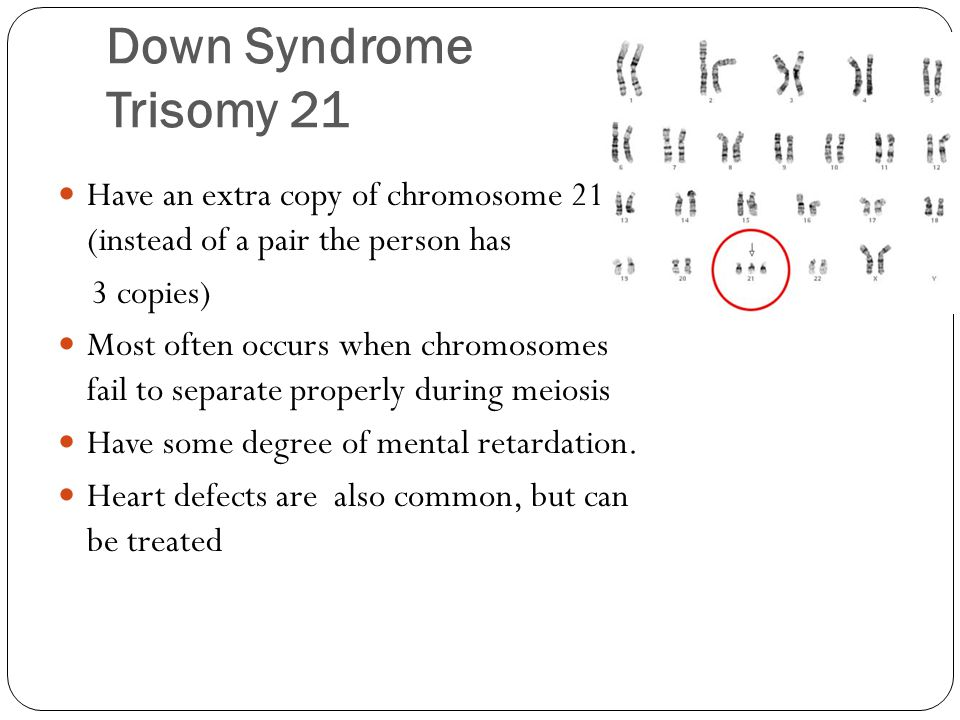 Down Syndrome Trisomy 21 Have an extra copy of chromosome 211 (instead of a pair the person has. 3 copies)