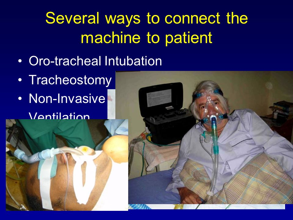 Several ways to connect the machine to patient