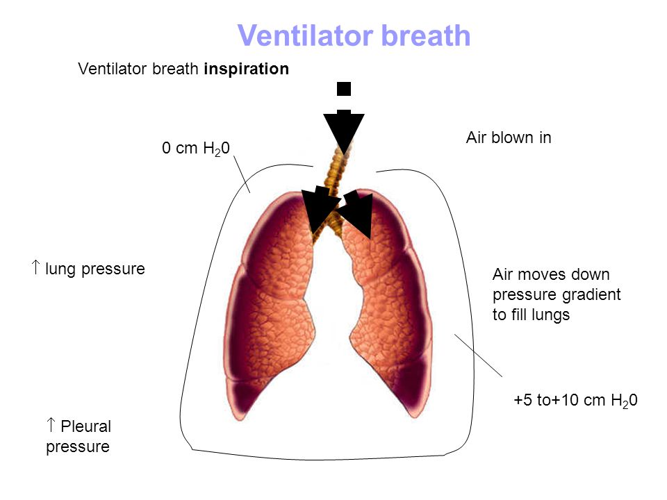 Ventilator breath Ventilator breath inspiration Air blown in 0 cm H20