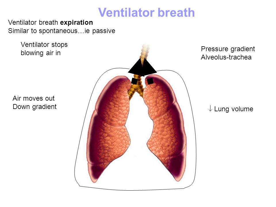 Ventilator breath Ventilator breath expiration