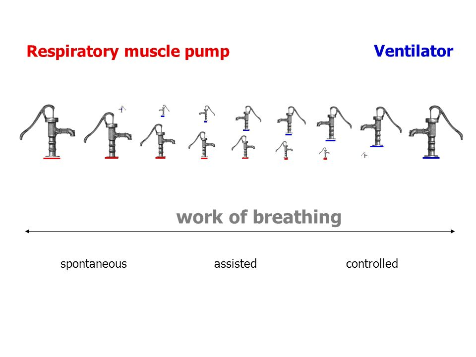 work of breathing Ventilator Respiratory muscle pump .
