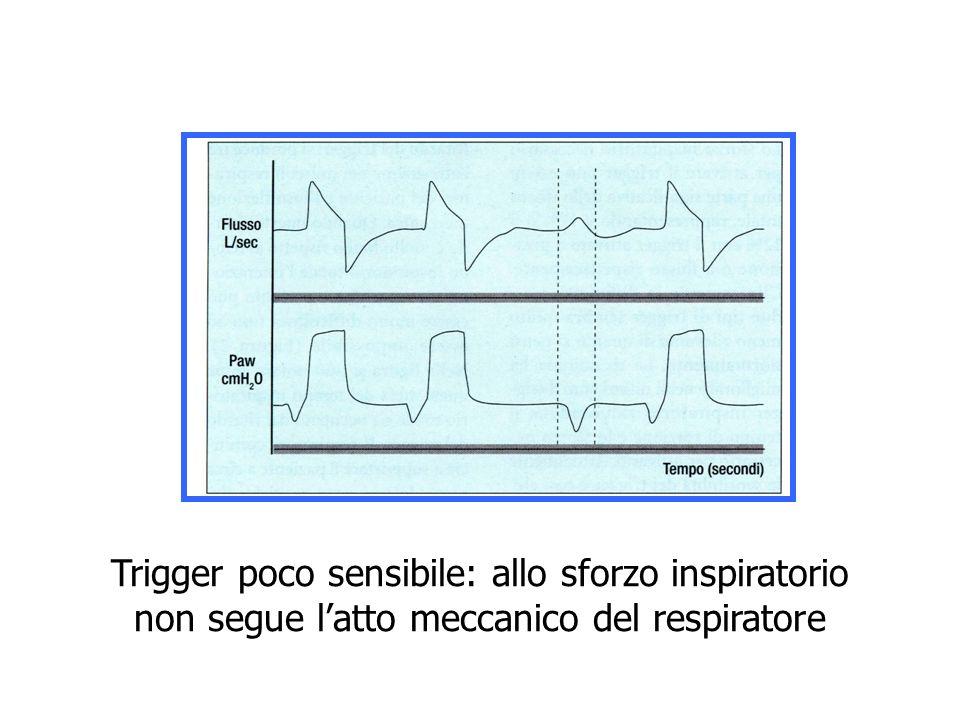 Trigger poco sensibile: allo sforzo inspiratorio non segue l'atto meccanico del respiratore