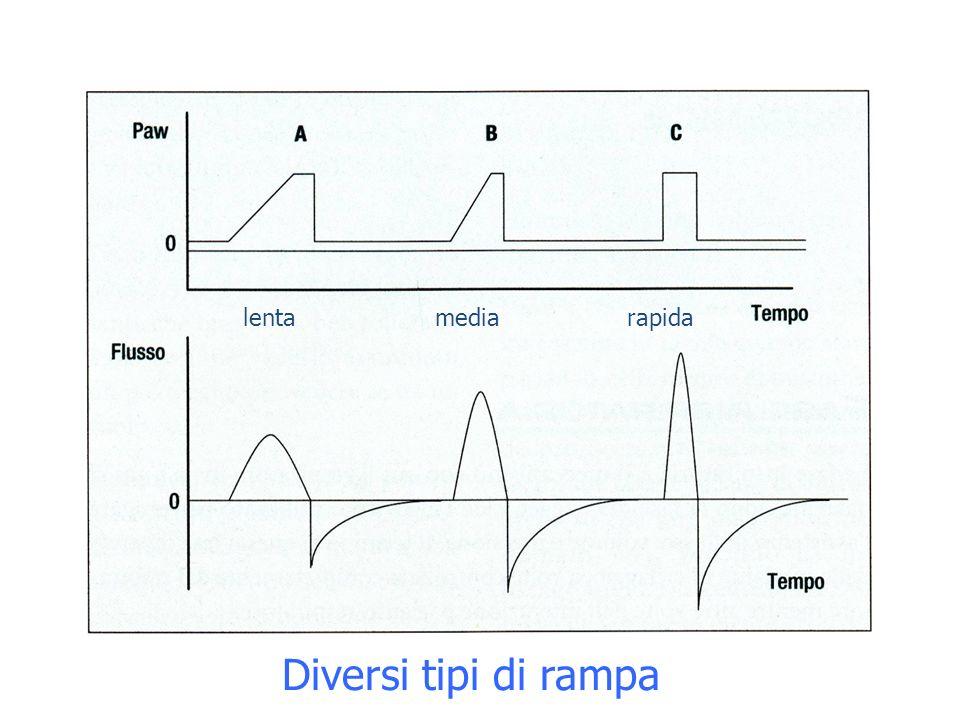 lenta media rapida Diversi tipi di rampa