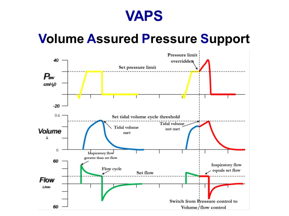 Volume Assured Pressure Support