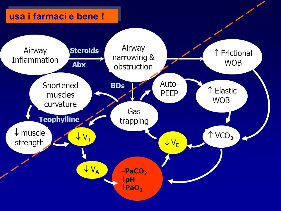 usa i farmaci e bene ! Airway Airway narrowing &  Frictional