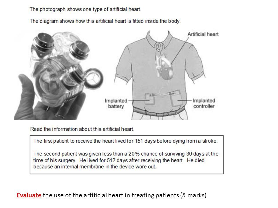 Evaluate the use of the artificial heart in treating patients (5 marks)