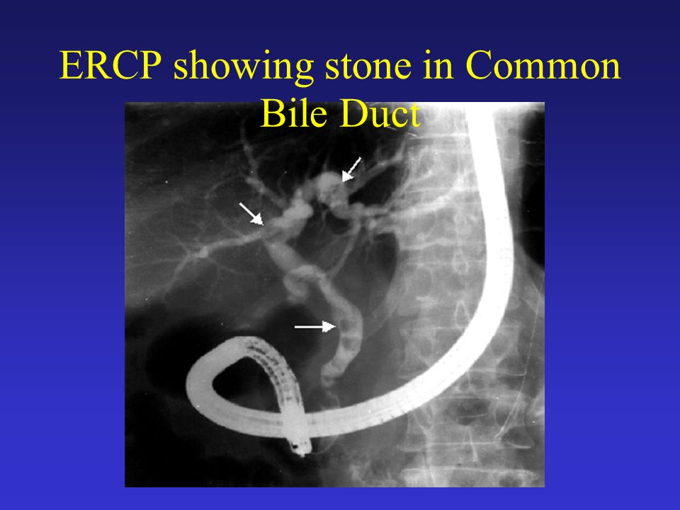 ERCP showing stone in Common Bile Duct