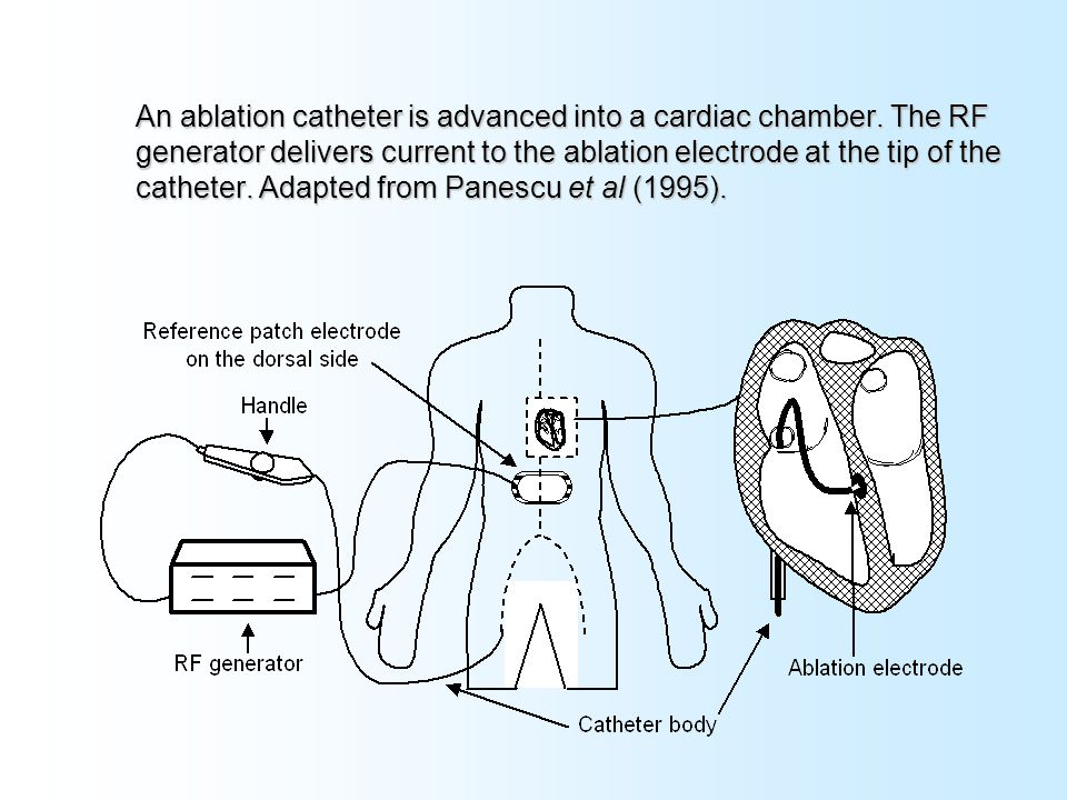 Electrosurgery and ablation ppt video online download an ablation catheter is advanced into a cardiac chamber ccuart Images