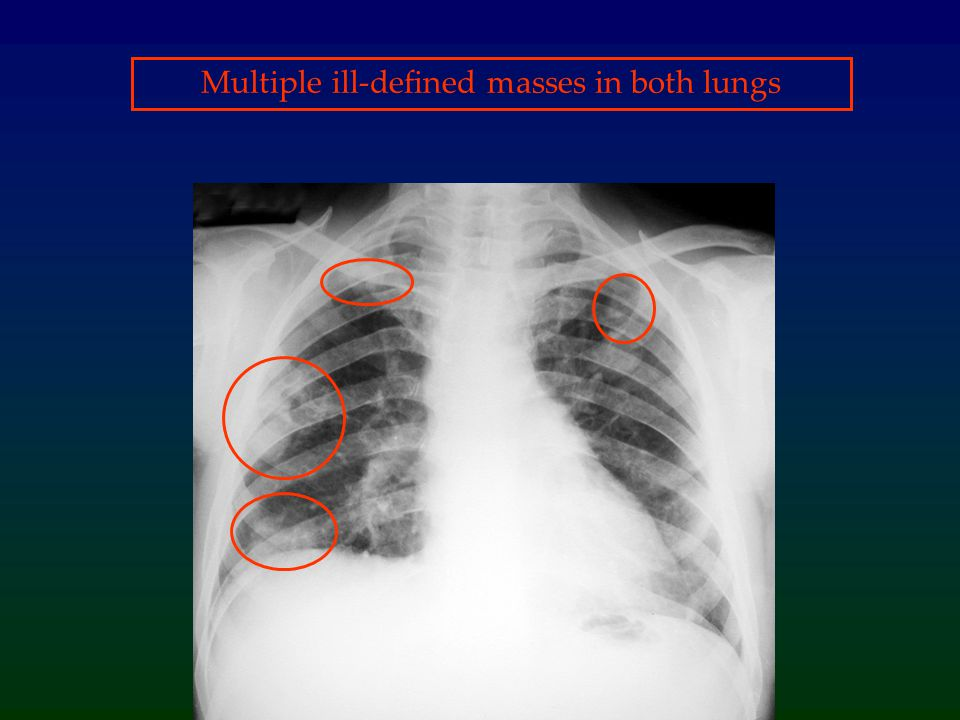 Multiple ill-defined masses in both lungs