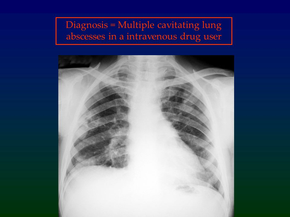 Diagnosis = Multiple cavitating lung