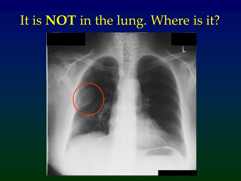 It is NOT in the lung. Where is it