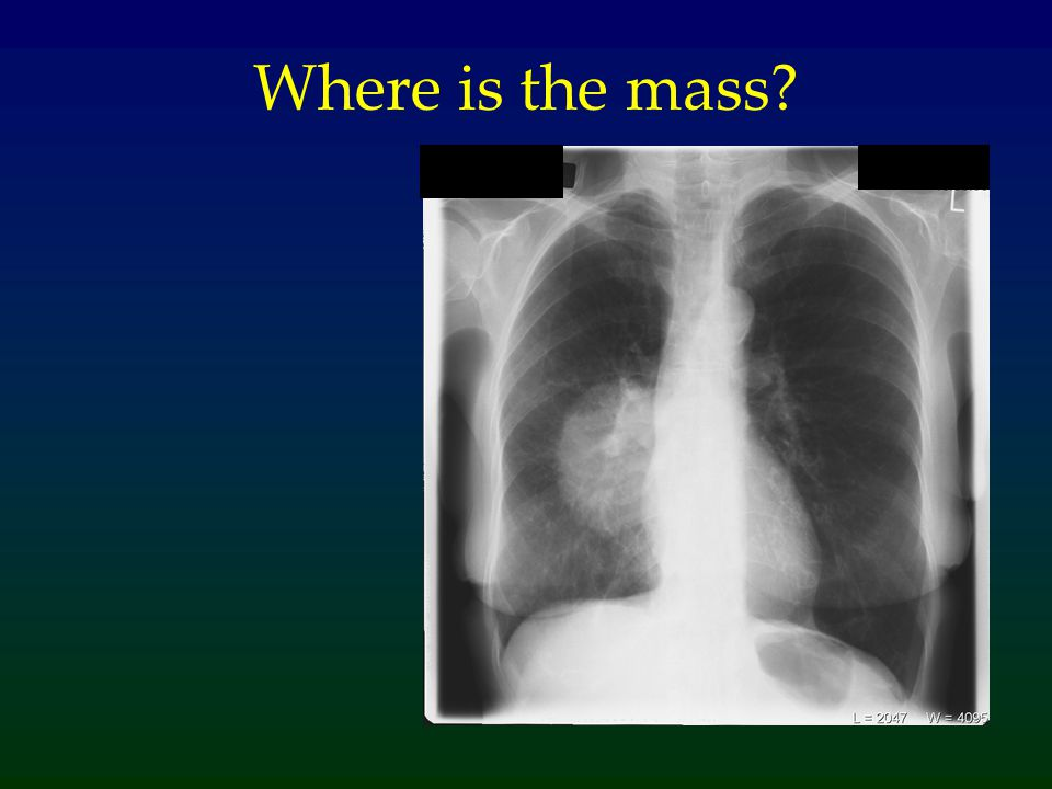 Where is the mass