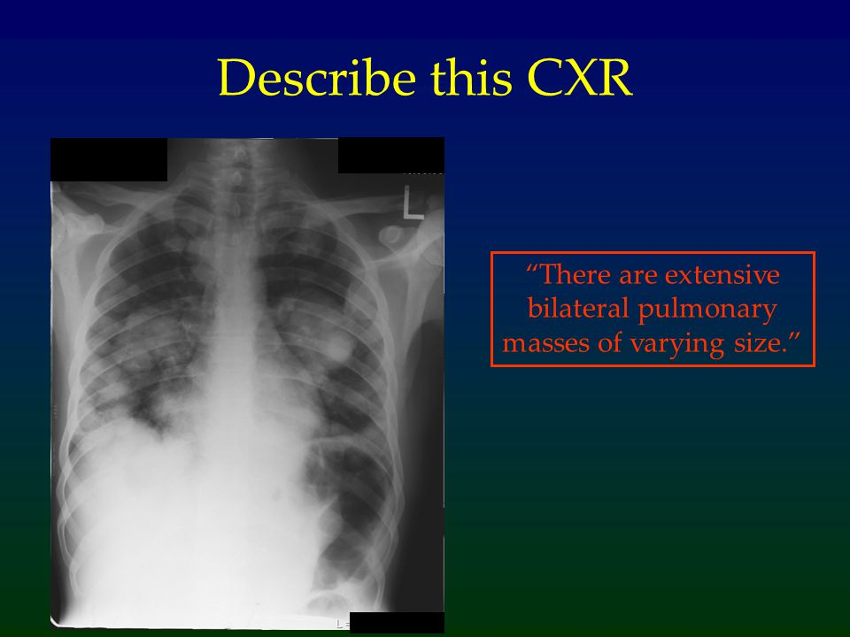 There are extensive bilateral pulmonary masses of varying size.