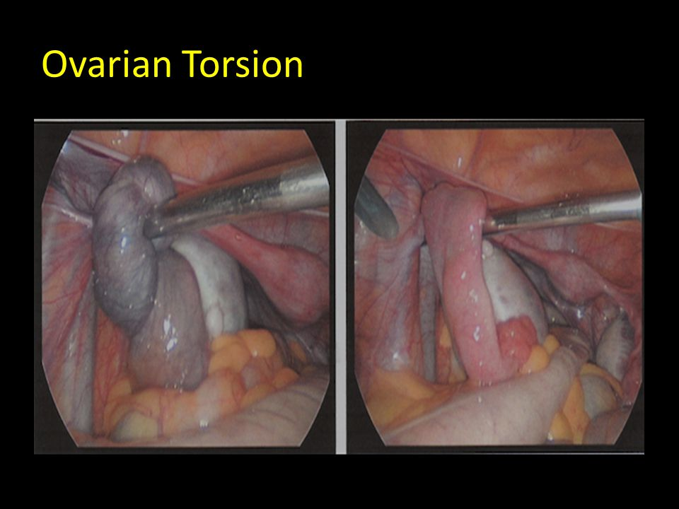 What Is an Ovarian Cyst What Is an Ovarian Cyst new images