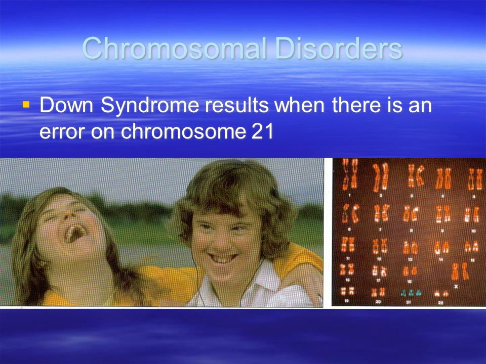 """an analysis of the human chromosomes and the effort to find a hemophilia Pairs of human chromosomes are numbered from 1 through 22 and the sex chromosomes are designated x and y males have one x and one y chromosome and females have two x chromosomes each chromosome has a short arm designated """"p"""" and a long arm designated """"q""""."""