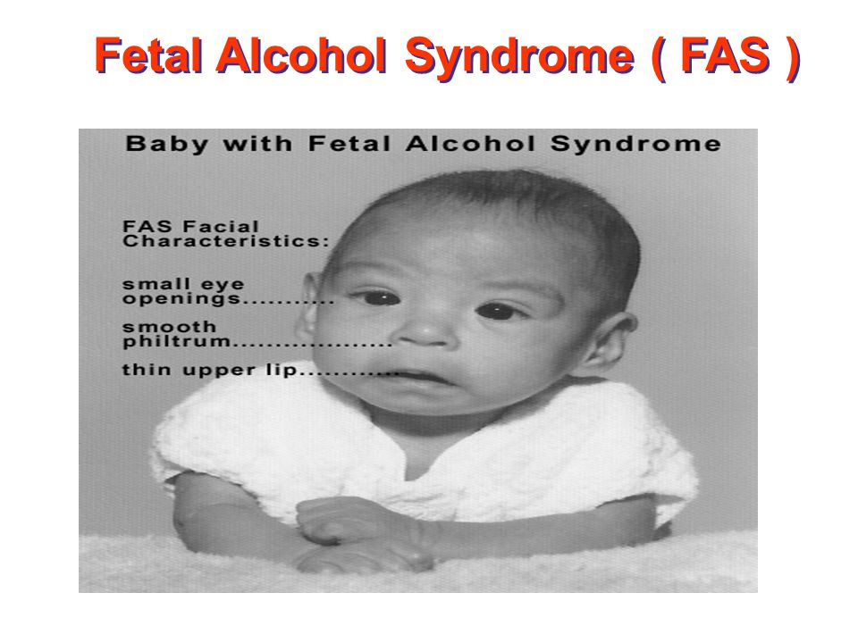 fetal abuse during pregnancy Prenatal substance abuse: during pregnancy, it is more likely that during the fetal period, after major structural development is.