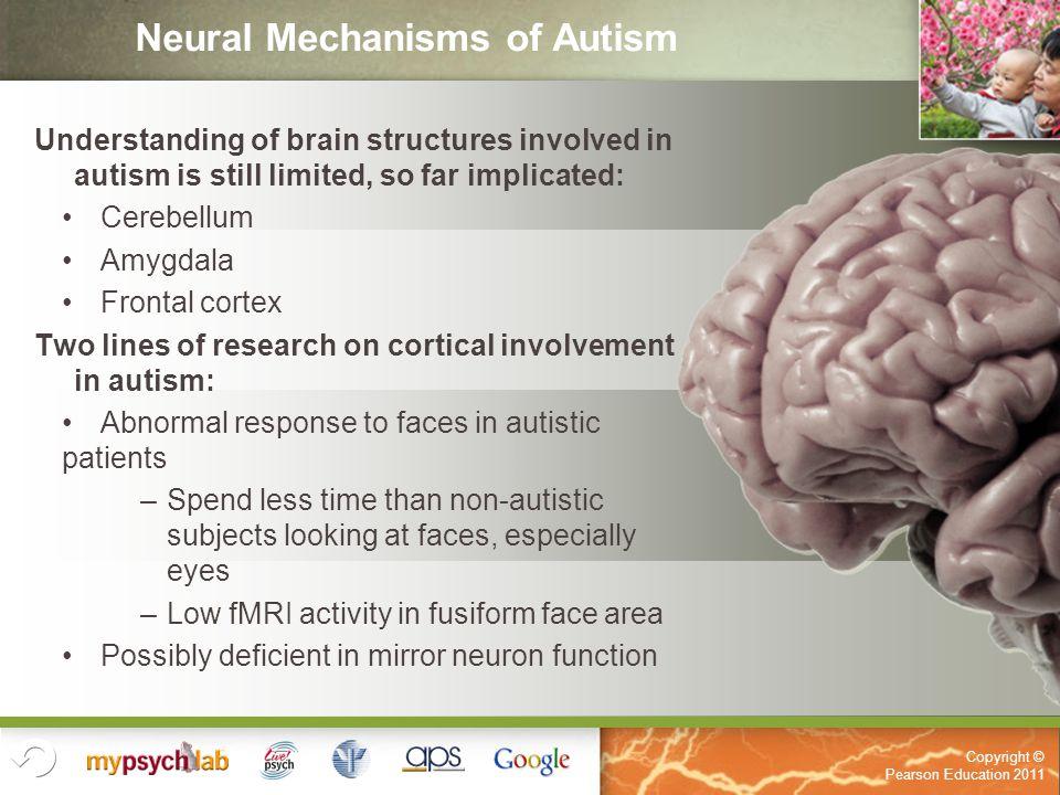 Atemberaubend Autism Anatomy And Physiology Fotos - Menschliche ...